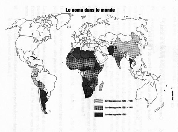 Verbreitung von Noma